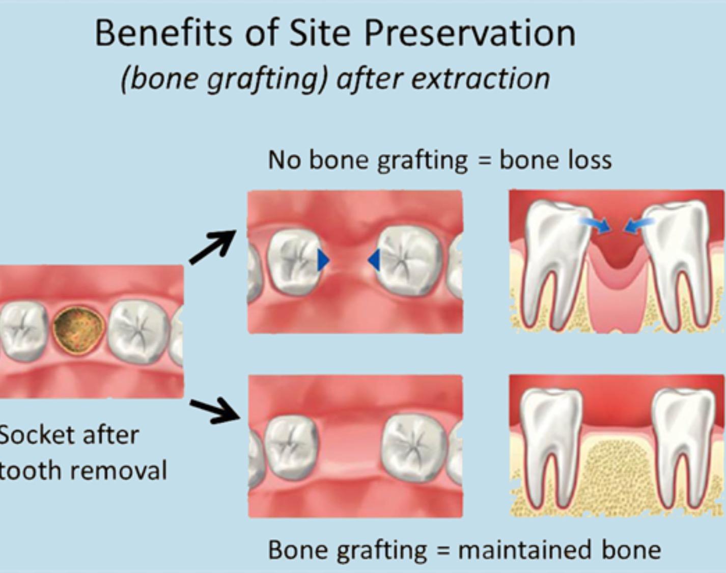 Oral Surgery – Bone grafts