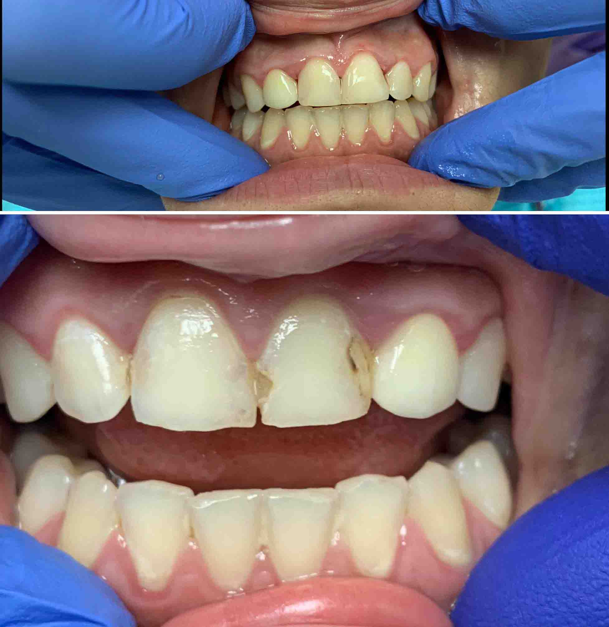Front Teeth Fillings Before And After Cumming Dental Cumming Ga