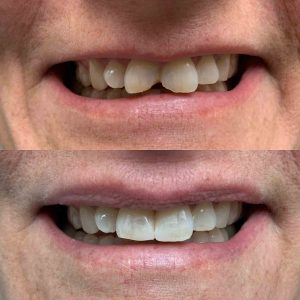 front-tooth-fillings-C-before-after