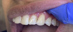 Front Tooth Filling. Beautiful Smile