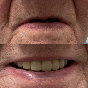 FULL DENTURE IN CUMMING, GA